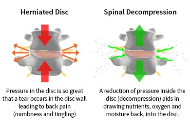 herniated disc and spinal decompresssion